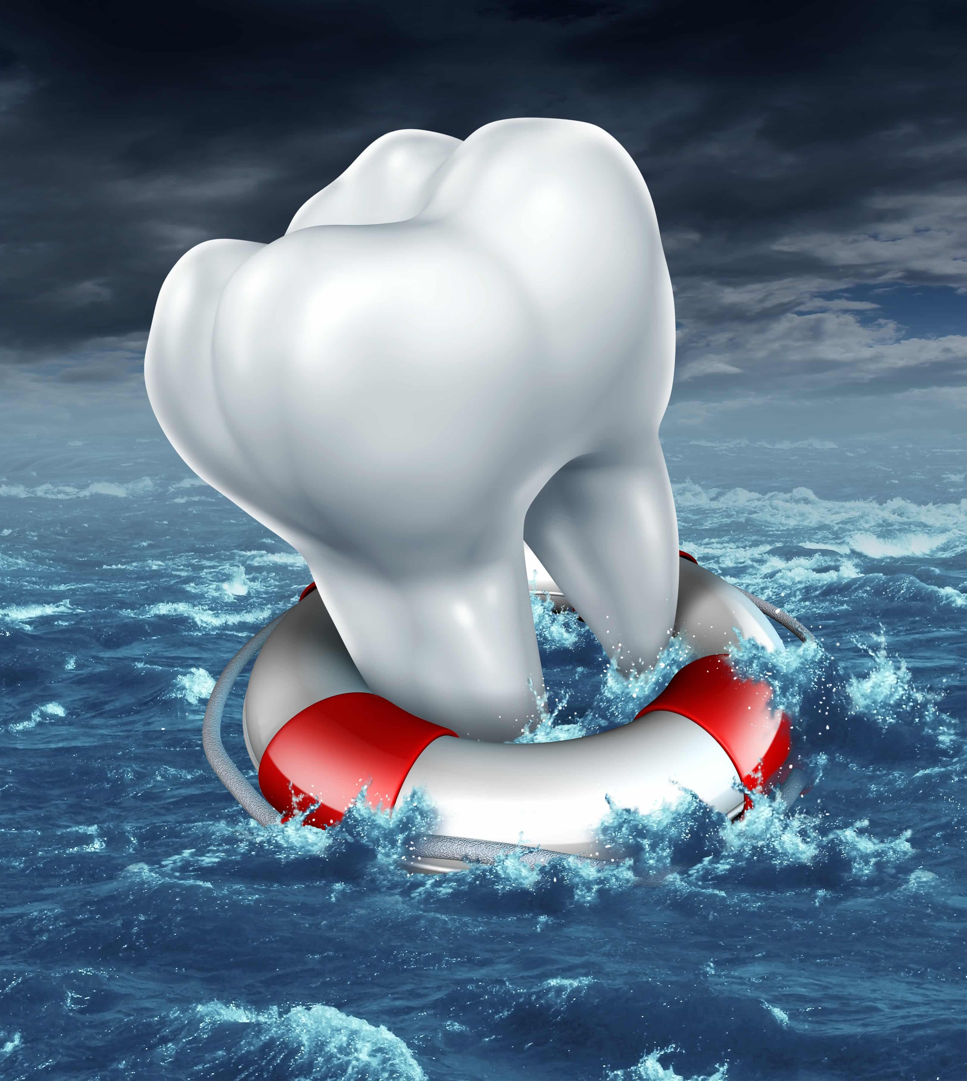 Dental Emergency - Saving the Tooth